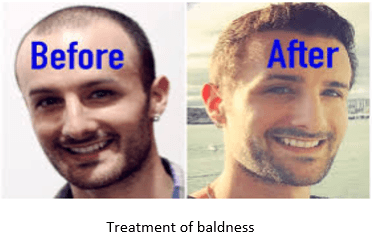 Treatment of baldness